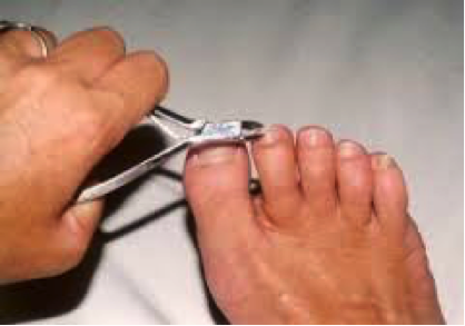 diabetic-footcare