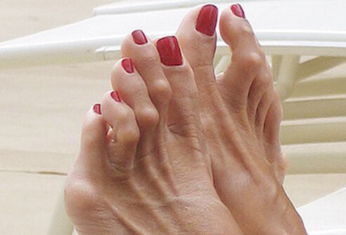 The Middle Joint Of Toe Is Bent Resembling A Hammer Hammertoes Can Cause Thickened Toenails And Corns Or Calluses On
